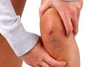 Knie & Knieschmerzen