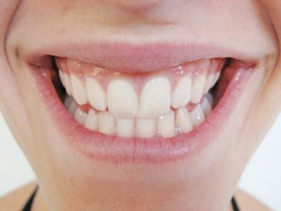 Ein lächeln mit Zähnen